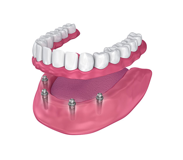 Mini Dental Implants Versus Traditional Implants